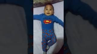 Superman adayı Yusuf (Trigonosefali ameliyat öncesi)
