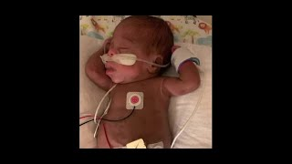 Baby hears mother's voice for the first time
