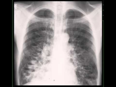 cystic bronchiectasis on chest x ray youtube