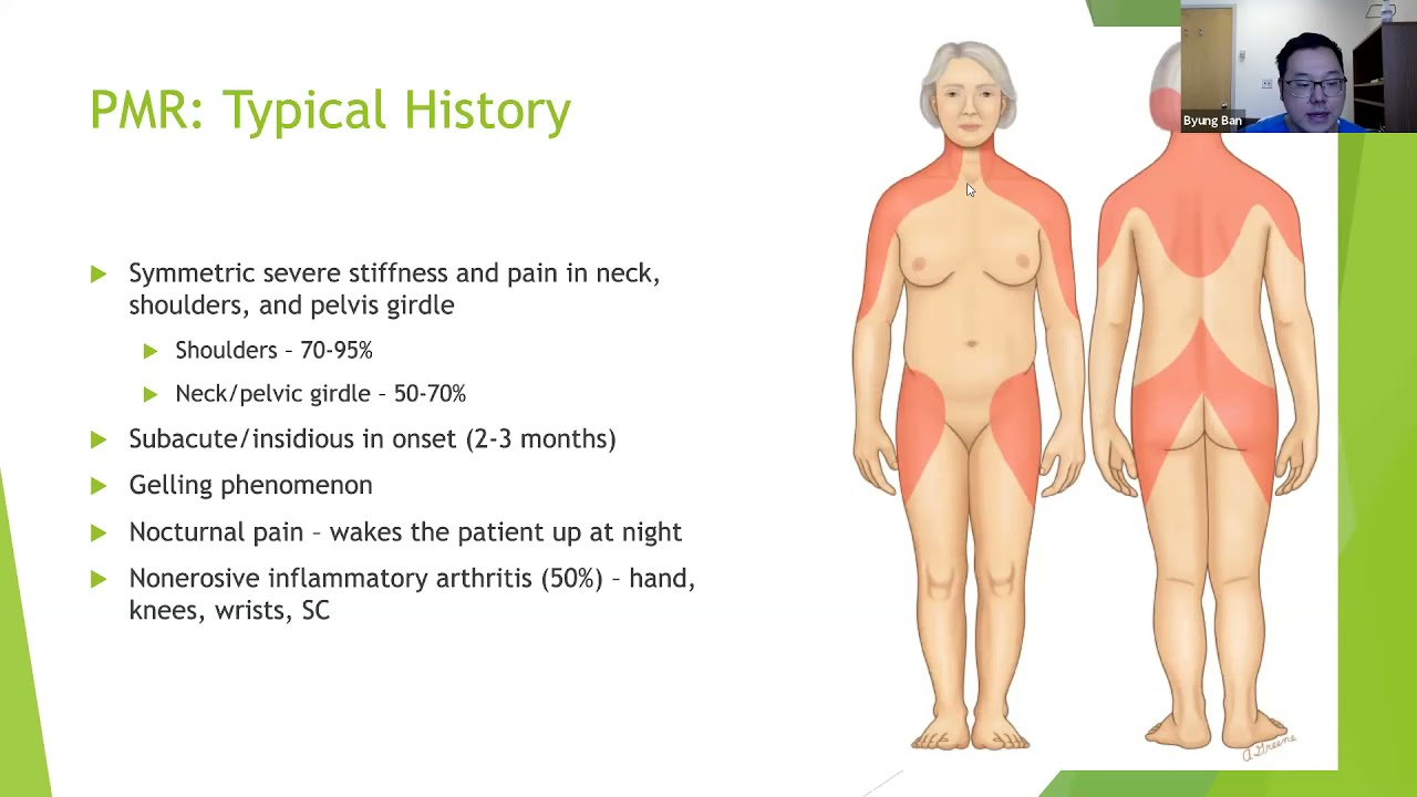 Download Polymyalgia Rheumatica (PMR) and Giant Cell Arteritis (GCA)