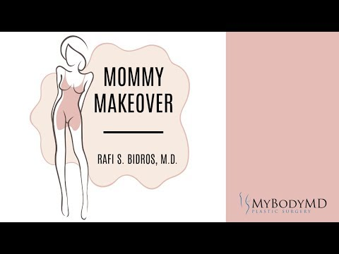Mommy Makeover | Rafi S. Bidros, M.D. with MyBodyMD Plastic Surgery - Houston, TX