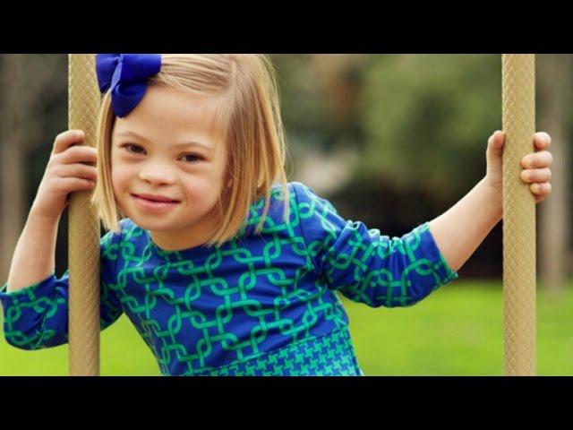 Osvojila sva srca: Djevojčica dokazala da Downov sindrom može biti uzbudljiv i inspirisati hiljade ljudi!