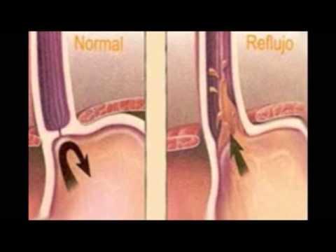 pérdida de peso debido a la hernia hiatal
