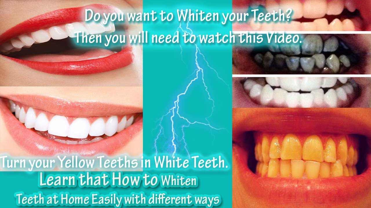 How To Whiten Teeth At Home Easily With Different Ways Do You Have