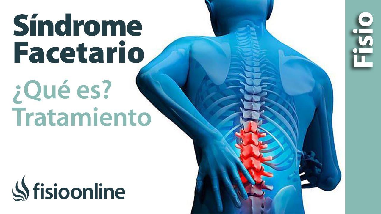 artrosis+lumbar+facetaria