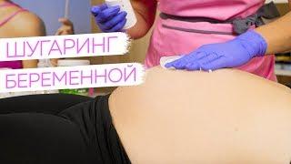 Эпиляция беременной ПРАКТИКА - Шугаринг от Яны Осадчей