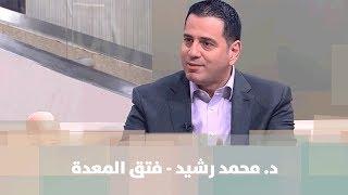 د. محمد رشيد - فتق المعدة