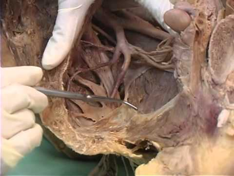 Pelvis Perineum 1 Of Osteology And Muscles Of The Pelvis Youtube