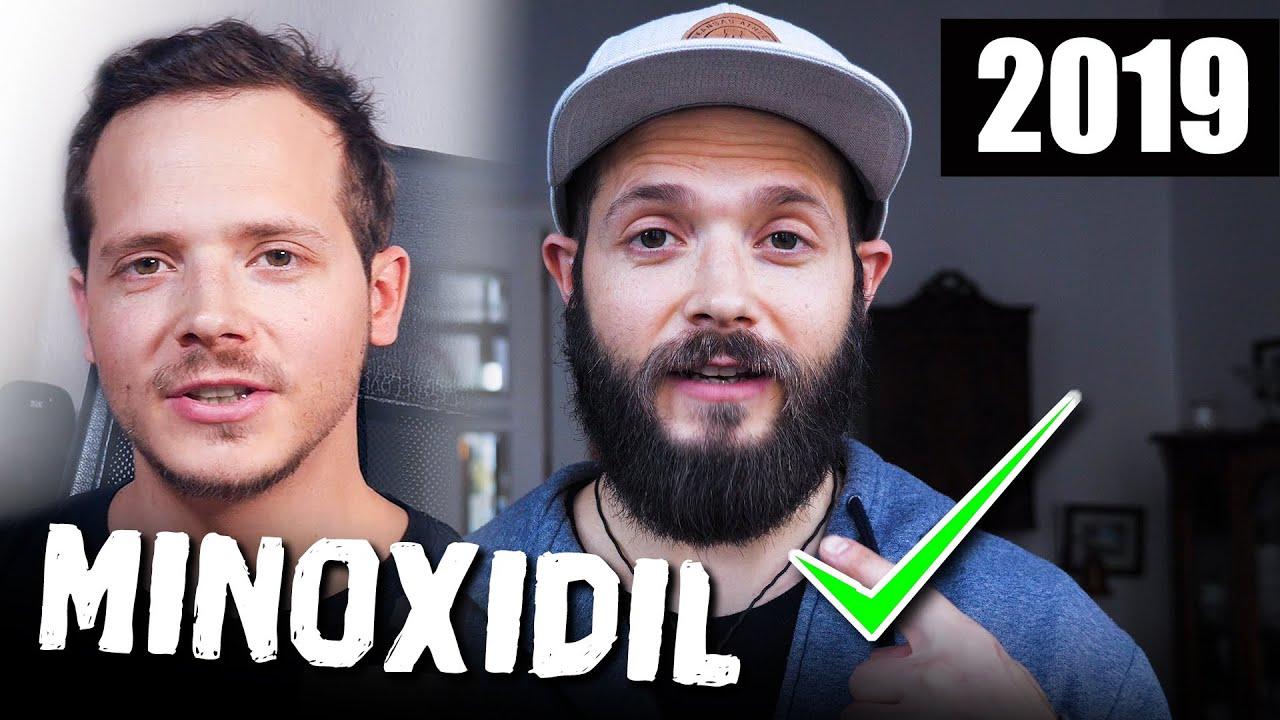 Bart erfahrung minoxidil Minoxidil Bart