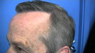 Hair Transplant Video - Dr Hasson Patient - 4898 Grafts - 1 Session