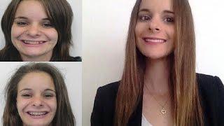 ♡ Mon opération maxillo faciale Avant / Après ♡ (Pauline)