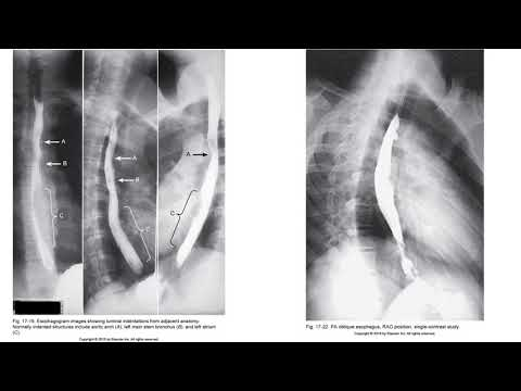 Radiographic Positioning of the Esophagus