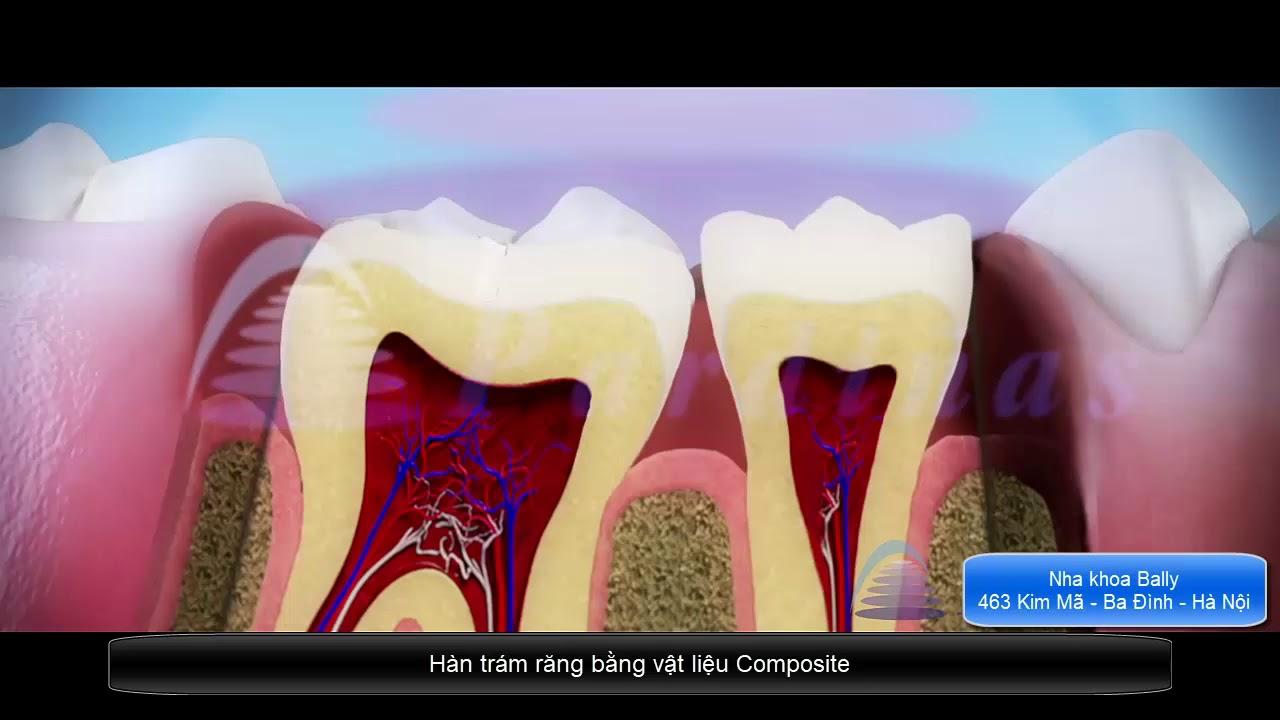 Kỹ thuật Hàn Trám răng bằng Composite - YouTube