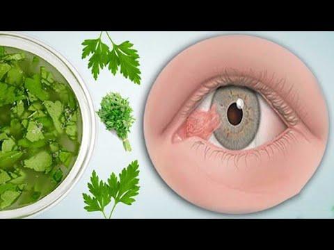 Mit diesem Kraut kannst du Augenkrankheiten vorbeugen