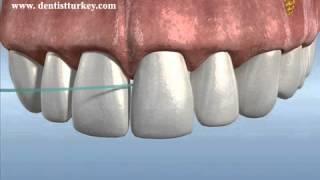 diş ipi ile köprü altı temizliği - Dentestetik Ege Med. Dent. Bülent Kenir