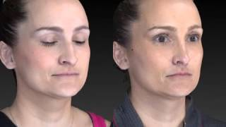 Rhinoplasty 3D Before and After-16