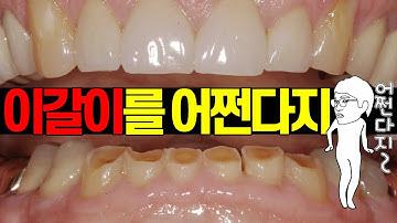 잠잘때 이갈이! 스트레스 받는 분 보세요  | 치과의사가 알려주는 이갈이의 모든 것!
