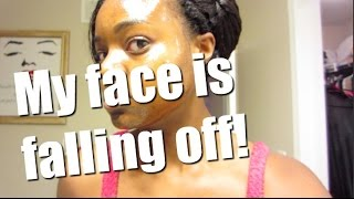 MY FACE IS SO SWOLLEN ❄ Vlogmas Day 11 ❄ 2014