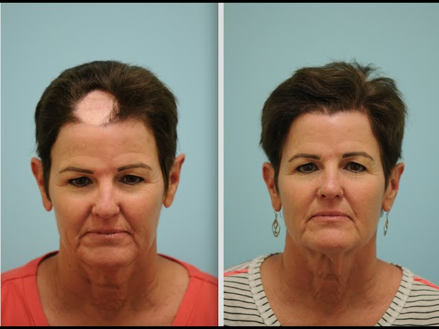 Hair Transplant Testimonial for Scar Repair/Cancer Reconstruction