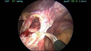 Laparoscopic Reoperative Hiatal Hernia Repair - Dr. Ninh T. Nguyen.
