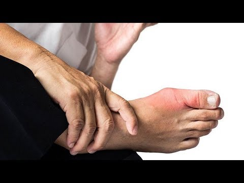 Как выглядит подагра: фото на ногах, симптомы на руках, тофусы при подагре на пальце ноги