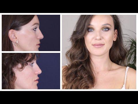 Dudak Dolgusu ve Botoks Deneyimim | İşlem Görüntüleri