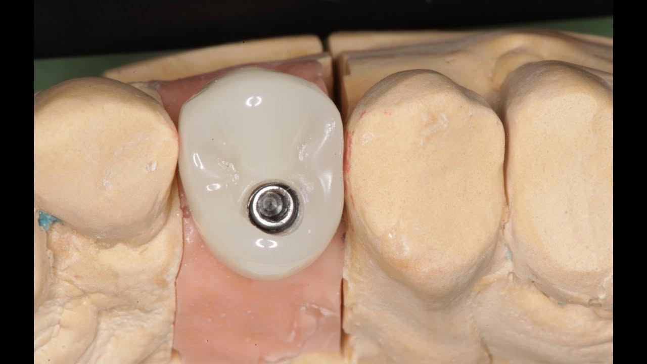 Пища под ортопедической конструкцией? Экватор зуба