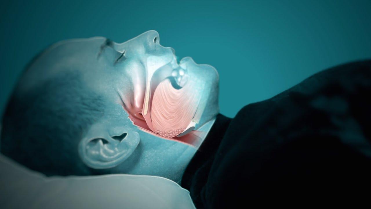 Image result for sleep apnea