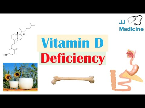 Vitamin D Deficiency | Introduction, Absorption & Metabolism, Purpose of Vit D, Causes of Deficiency