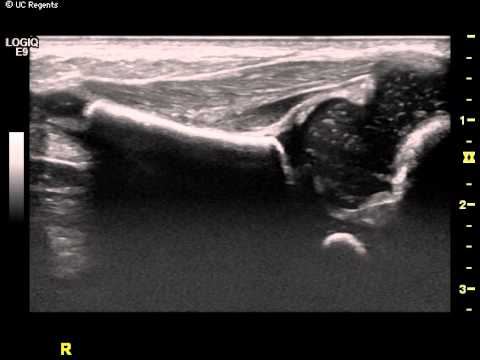 Dynamic Ultrasound Imaging of the Hip in a 2 week-old. - YouTube