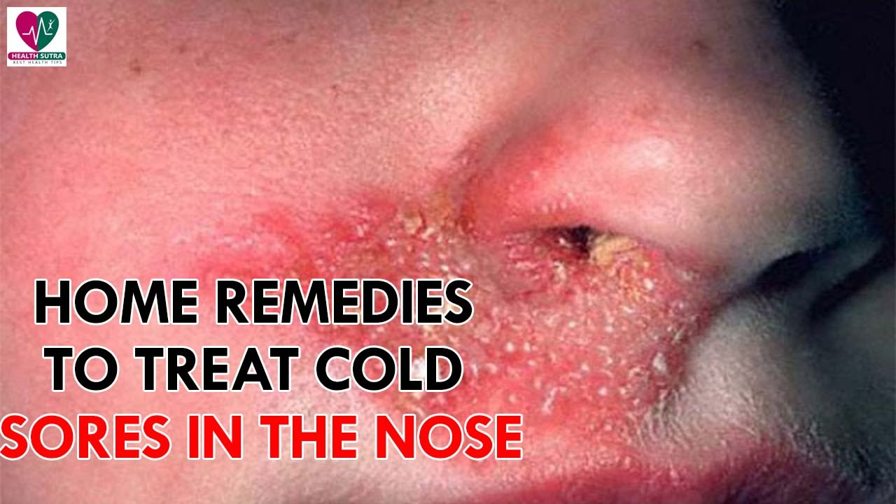Home Remedies To Treat Cold Sores In The Nose Health Sutra Youtube