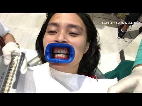 My Daily Routine   Sekeluarga ke Dokter Gigi   Zara Kenzo pertama kali Periksa Gigi
