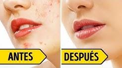 hqdefault - Como Eliminar Cicatrices De Acne En El Rostro