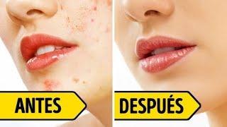 Esto te ayudará a deshacerte de las marcas del acné en 4 días