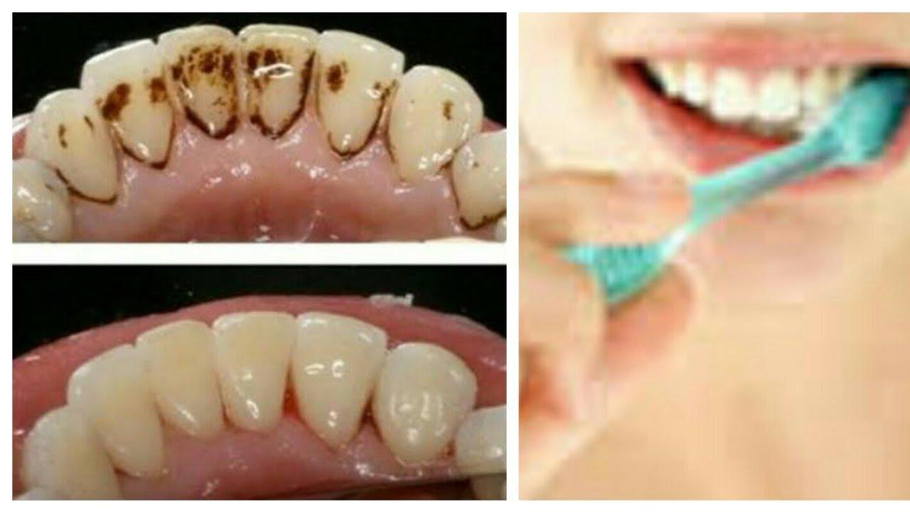 Diş Eti Çekilmesine Doğal Çözüm İlaç Çare