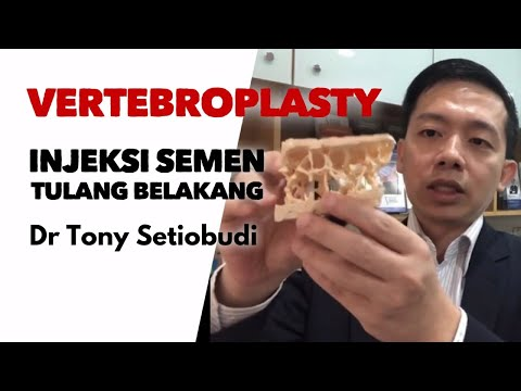 video ini memberikan informasi tentang organ gerak manusia terutamavideo ini memberikan informasi te.