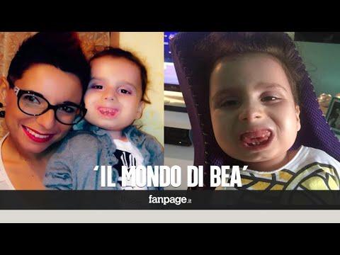 La storia di Bea, bimba di pietra intrappolata nel suo corpo: 'Così ha raggiunto la mamma in cielo'