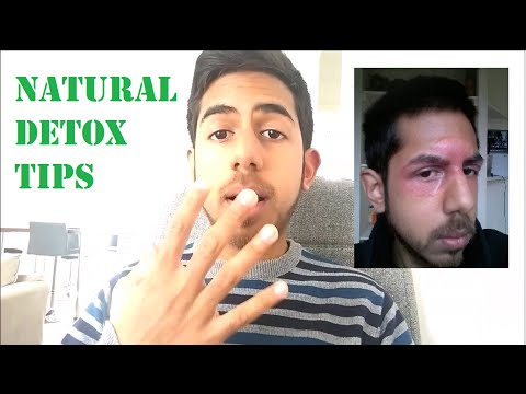 Top 5 Tips for Eczema Detoxification | EczemaHealing.org