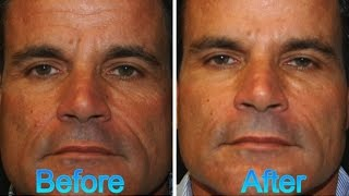 FOR MEN:  BEST Natural results with Botox and Facial Fillers - Before and Afters