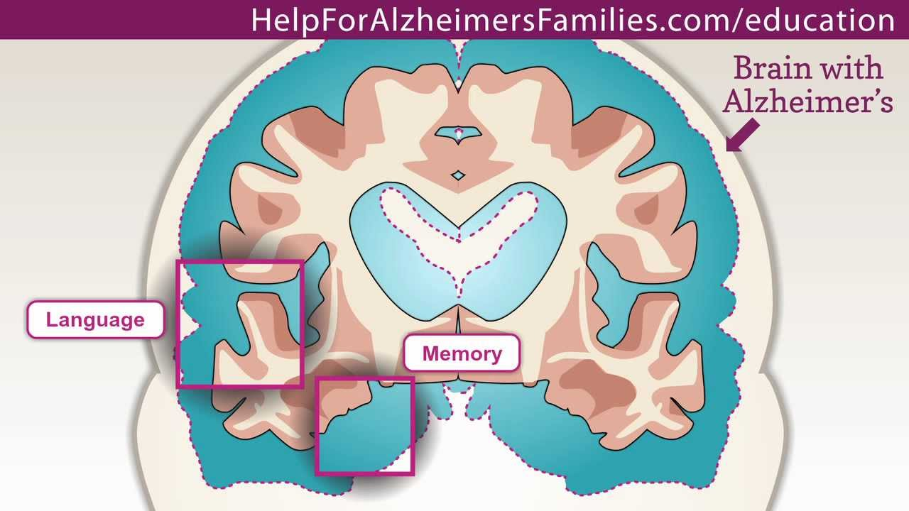 the effect of alzheimer s on the It's been suggested that exercise can trigger a change in the way the amyloid precursor protein is metabolized, 13 thus, slowing down the onset and progression of alzheimer's exercise also increases levels of the protein pgc-1alpha.