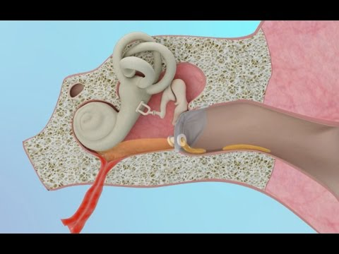 Clogged Ear Due to Ear Infection or Eustachian Tube Dysfunction