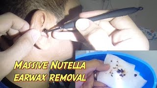 Massive Nutella Earwax Removal