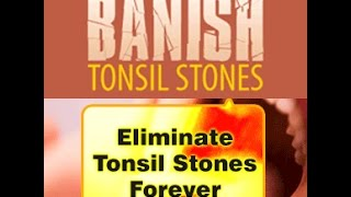 What Causes Tonsil Stones? Causes Of Tonsilloliths