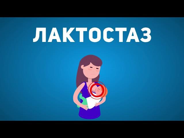 Крем LactActive Forte - средство от лактостаза