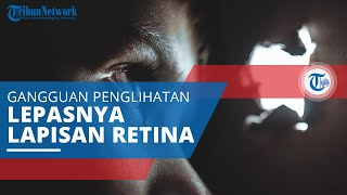 TRIBUN-VIDEO.COM - Iridosiklitis adalah jenis penyakit mata yang muncul akibat adanya peradangan pad.