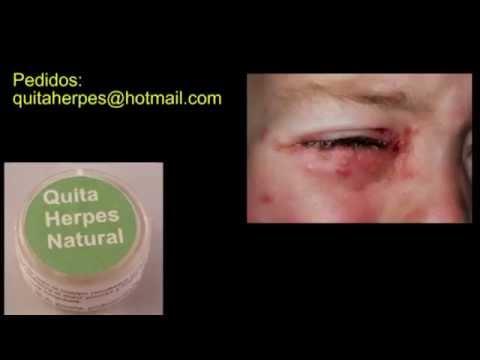 Cura Del Herpes Genital, Labial Y Zóster, Resultados Permanentes, Superior A Zovirax Y Acyclovir.