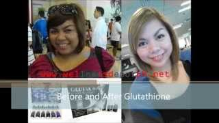 glutathione before and after wellnessdepotph