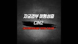 자궁경부 이형성(CIN2) / N87 / 제자리암(상피…