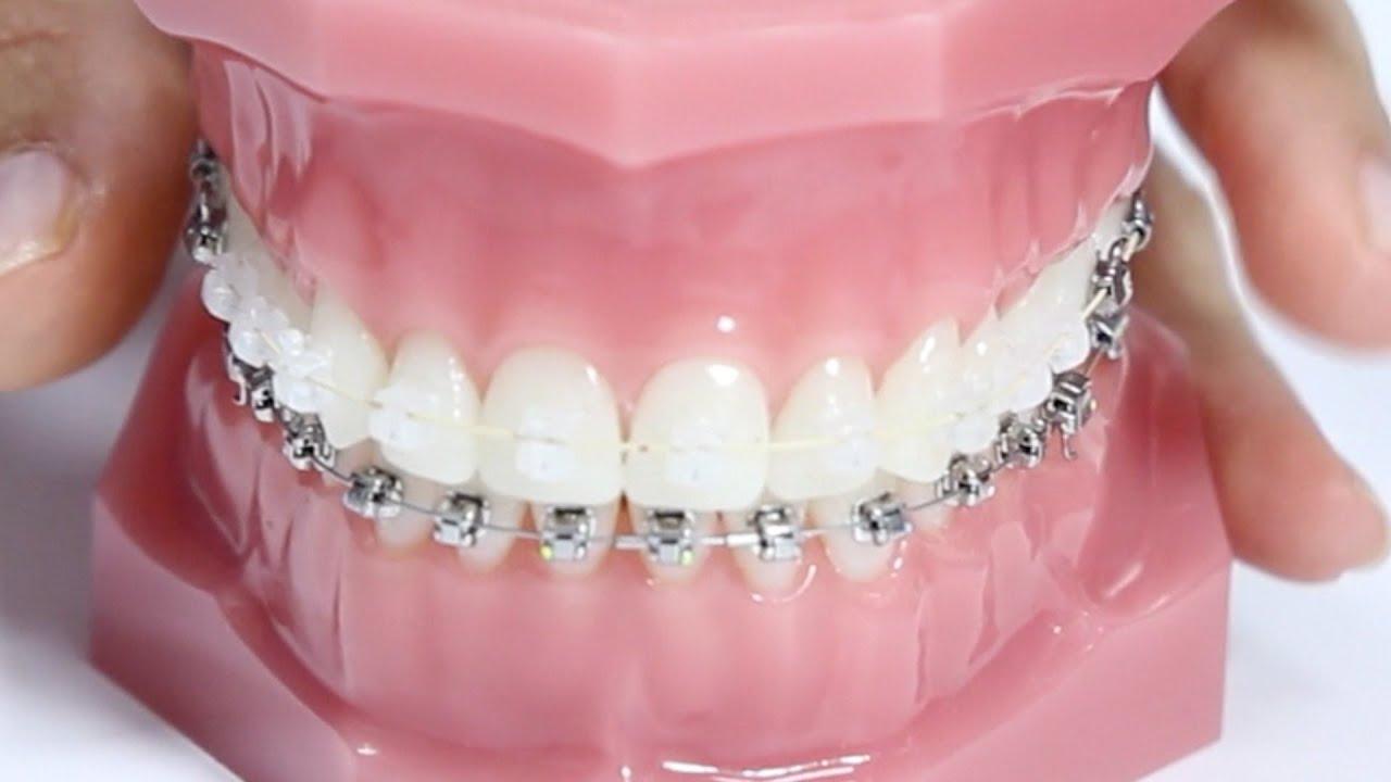 Tipos de ortodoncia y usos cuidados para una boca sana - Aparato para la humedad ...