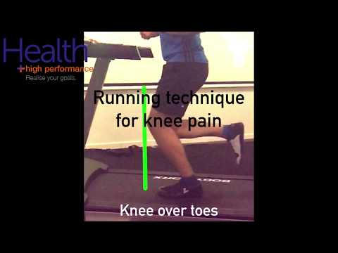 Running technique for runners knee, patellofemoral pain | Melbourne Sports Chiropractor